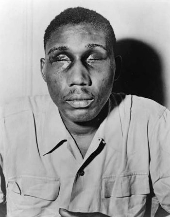 The image shows a photograph of Isaac Woodard, with his eyes swollen shut and bruised.